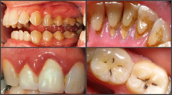 Отсутствие гигиены полости рта