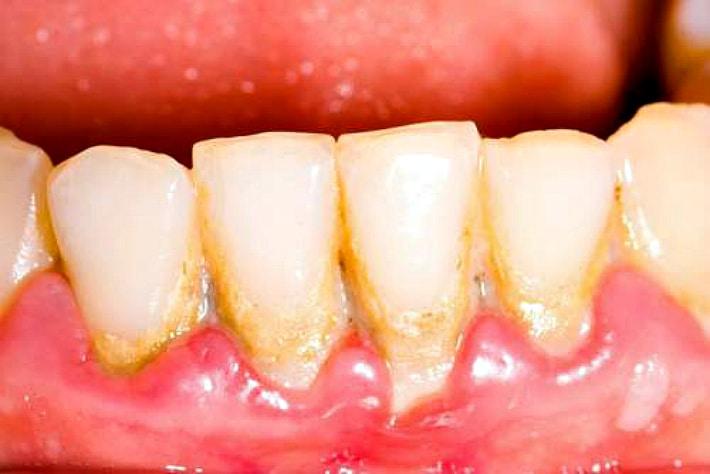 Лечение зубного зуда