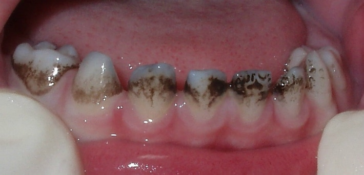 Черные зубы и хронические заболевания