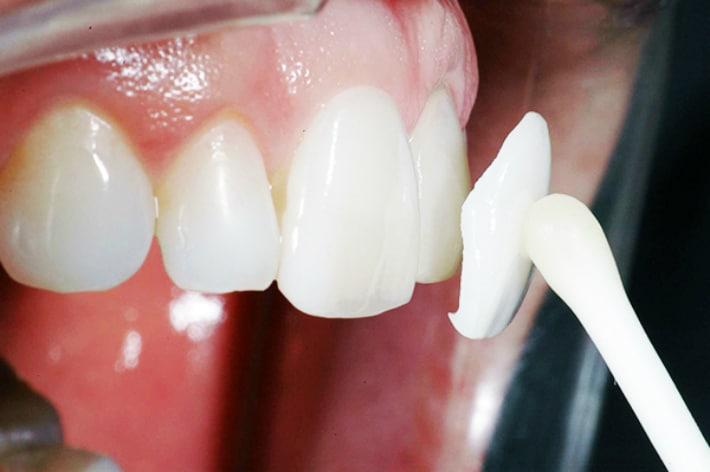 Использование люминиров в стоматологии