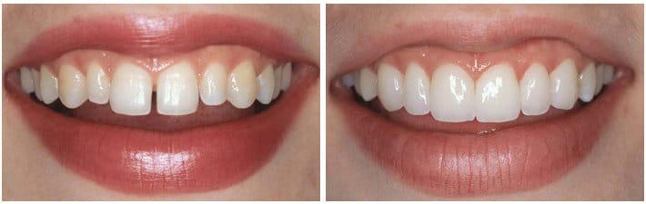 Коррекция зубов при помощи люминиров