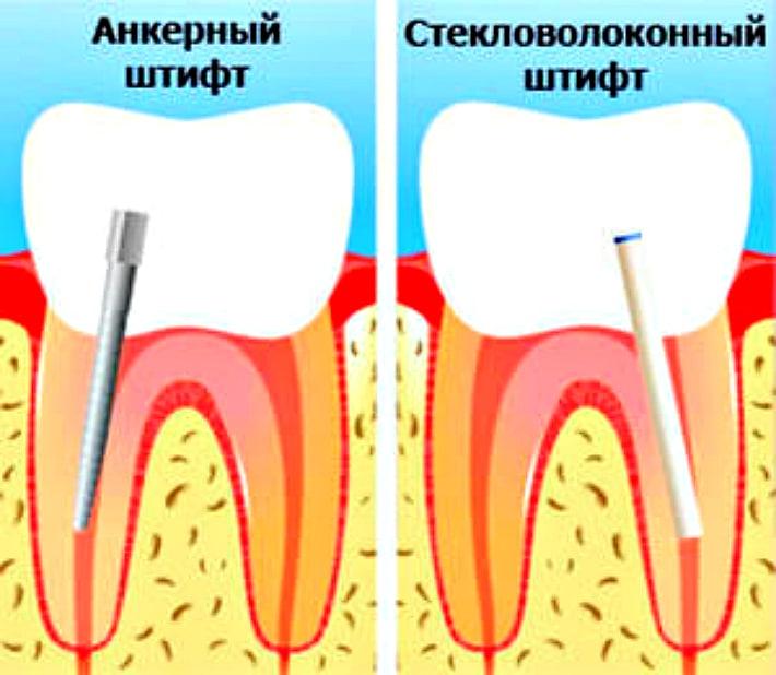 Виды штифтов применяемые в стоматологии