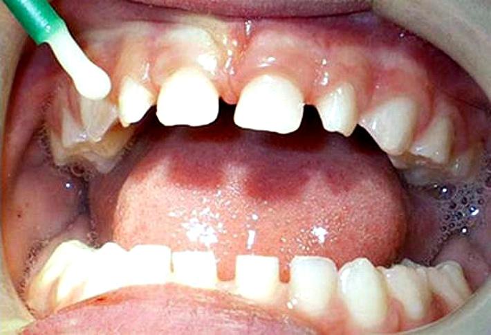 Реминерализация молочных зубов