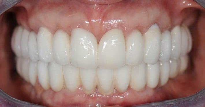 Люминиры из прочного стоматологического фарфора