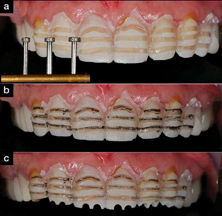 Установка виниров предполагает препарирование зубов