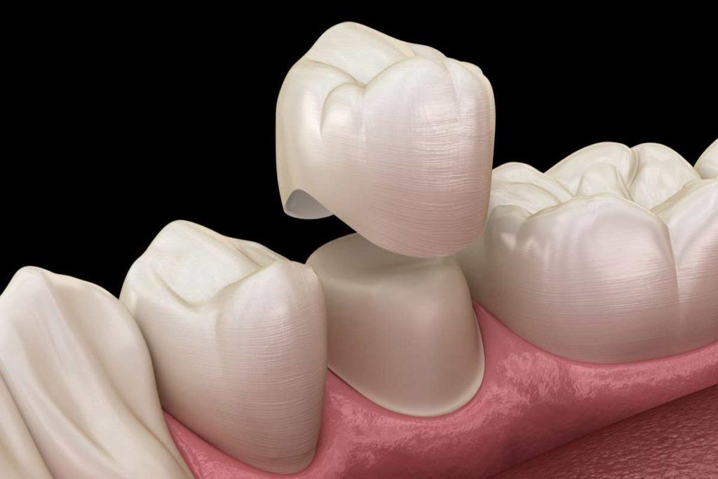 В чем отличие зубных коронок из диоксида циркония от металлокерамических