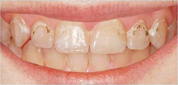 Появление трещинок и шероховатей на поверхности зуба