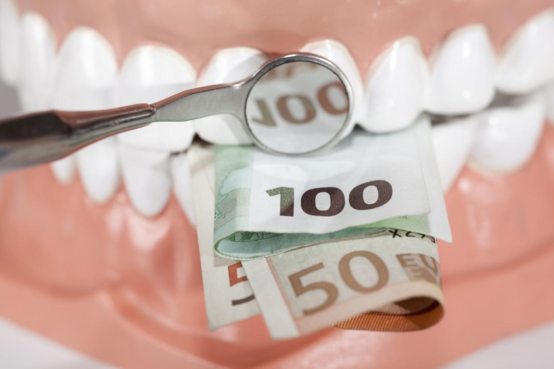 Сколько стоит винир на один зуб
