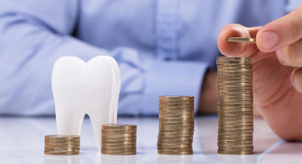Почему зубные импланты так дорого стоят