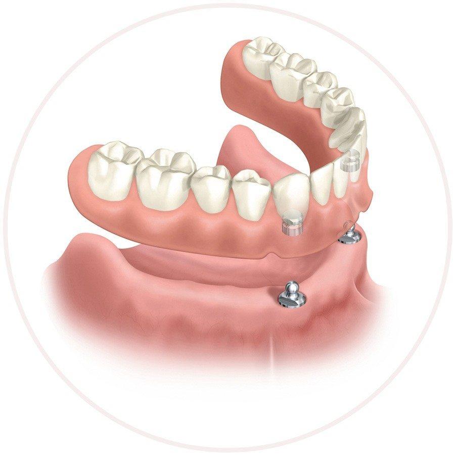Возможности современной зубной имплантации