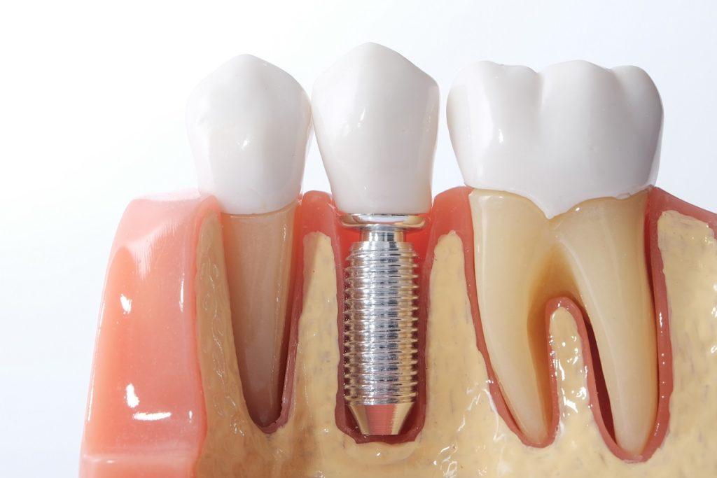 Как понять – прижился зубной имплант или нет