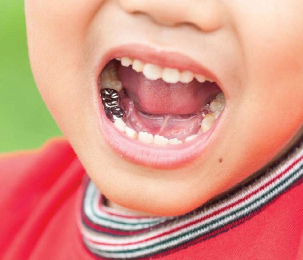 Показания к установке коронок детям на молочные зубы