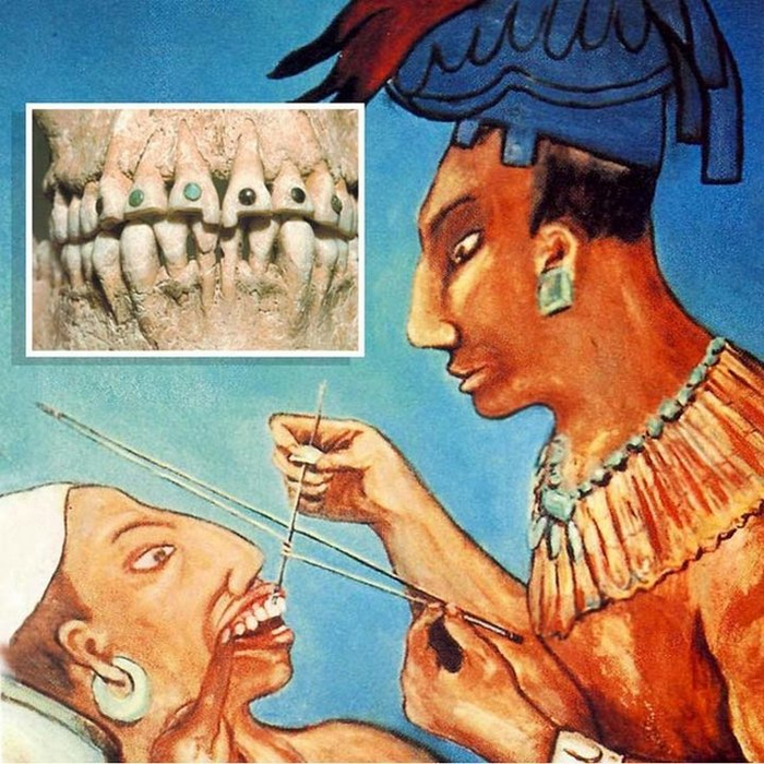 Древний стоматолог
