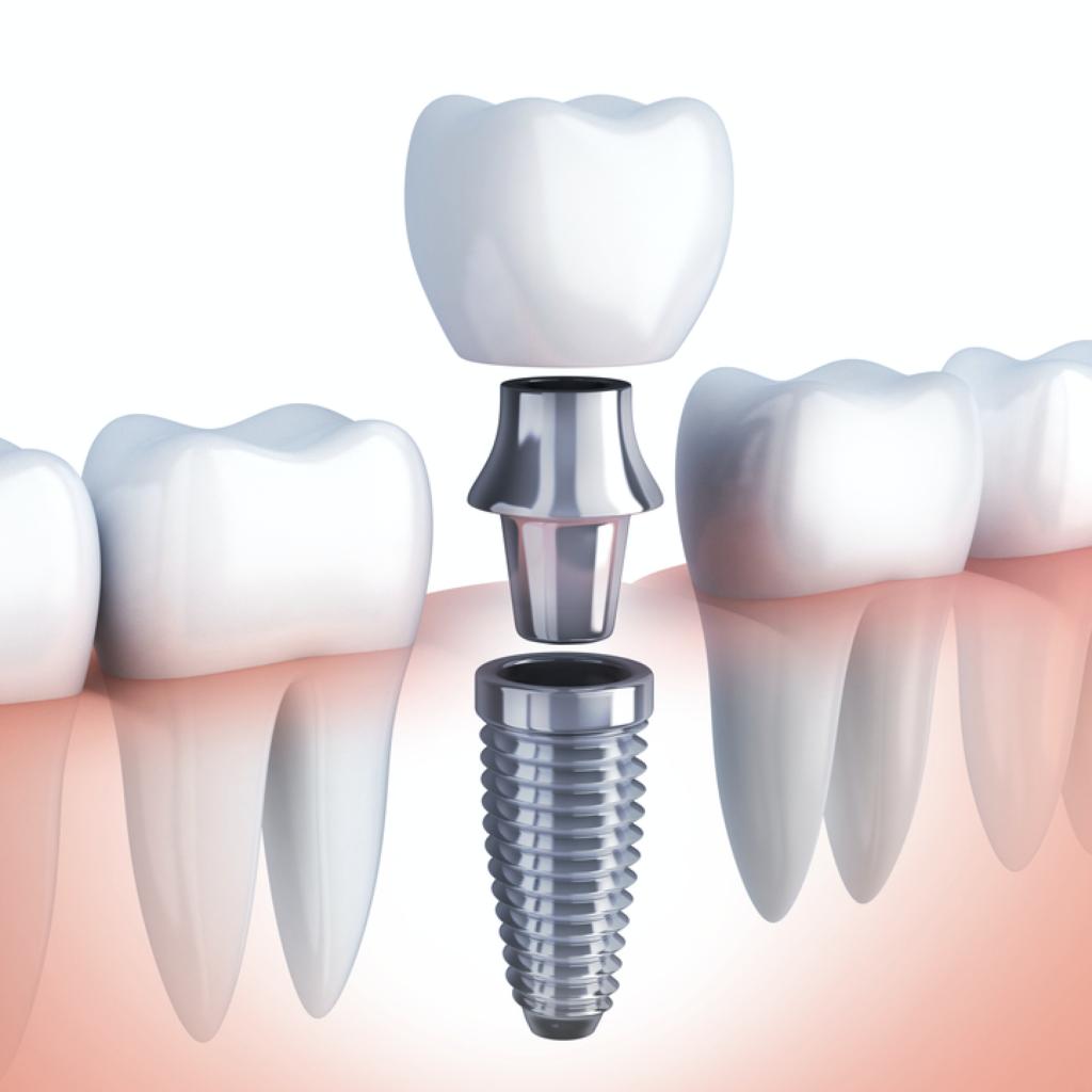 Что такое одноэтапная имплантация зубов за один день и как такое возможно