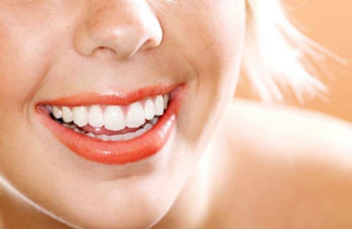 Экспресс отбеливание зубов