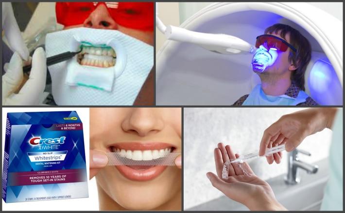 Экспресс-отбеливание зубов