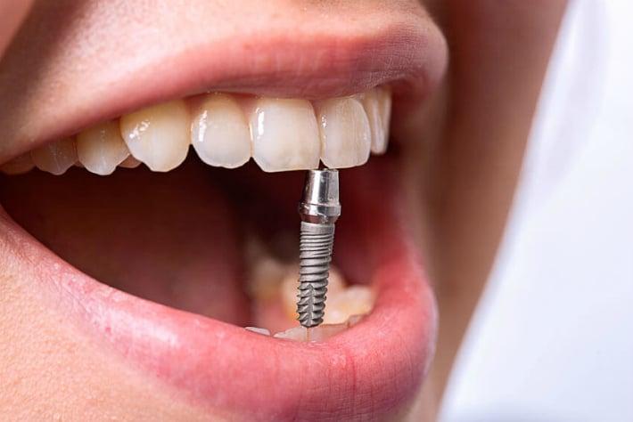 Эндодонтически стабилизированные зубные имплантаты: определение и преимущества