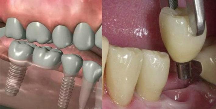 установки зубных имплантатов
