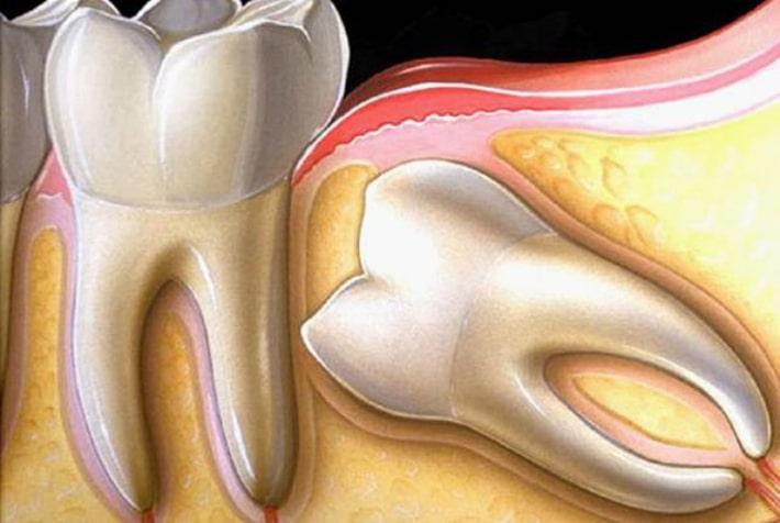 Противопоказание для эндодонтического лечения