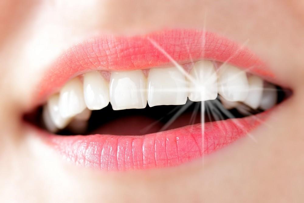 Эндоотбеливание зубов: что это такое и особенности процедуры