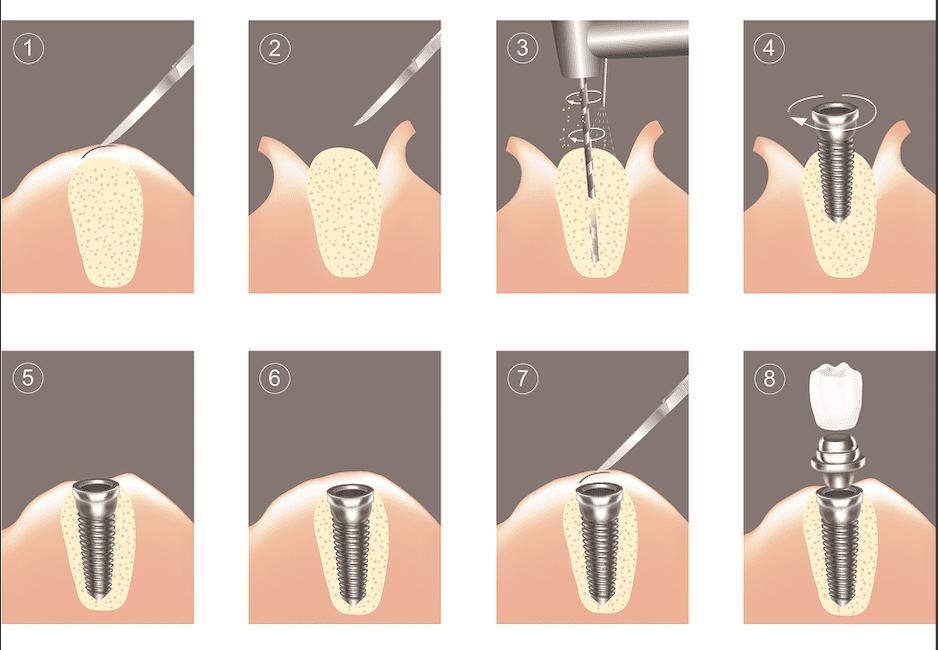Этапы имплантации