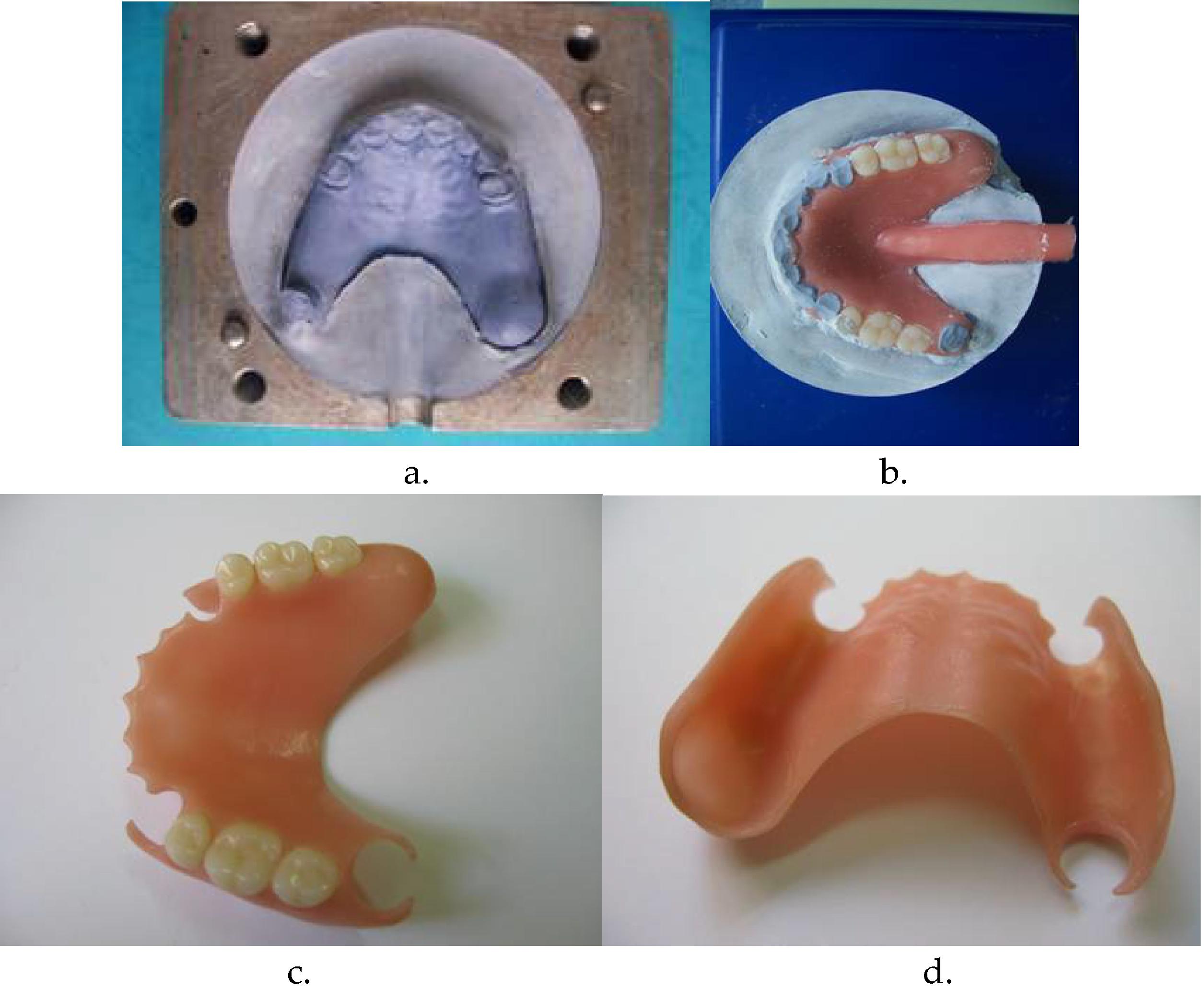 Этапы изготовления протеза