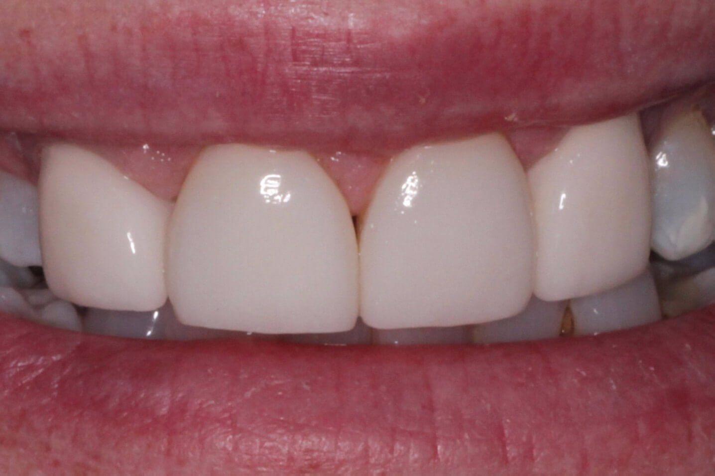 Передние зубы