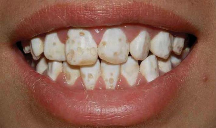 Флюороз зубов у детей и взрослых