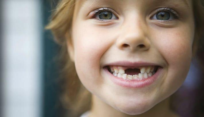Мероприятия по укреплению зубов