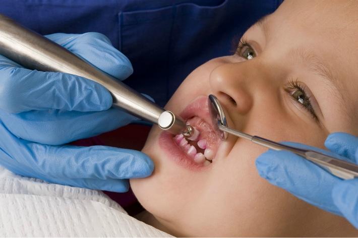 Профилактики кариеса и укрепления эмали зубов