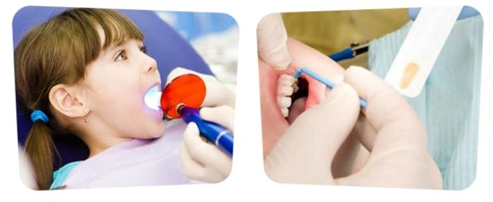 Фторирование зубов у детей