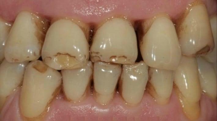 Гипоплазия тканей зуба