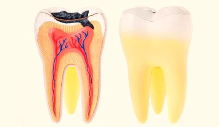 воспаление внутренних тканей зуба