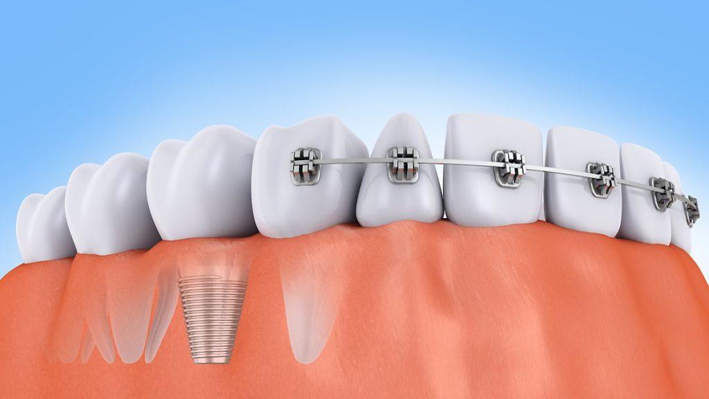 Можно ли ставить брекеты после имплантации зубов?