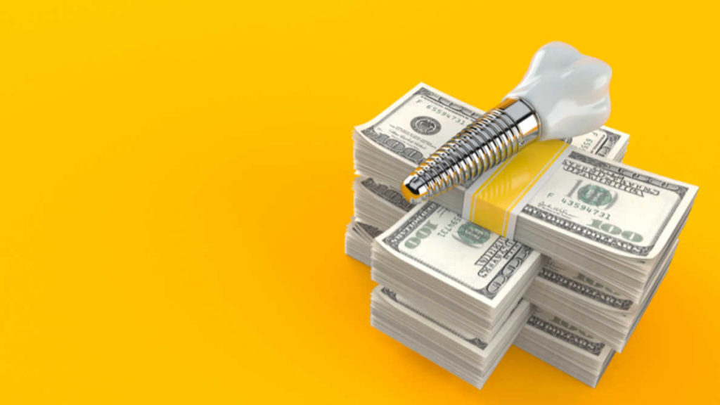 От чего зависит стоимость имплантации зубов и как сэкономить?