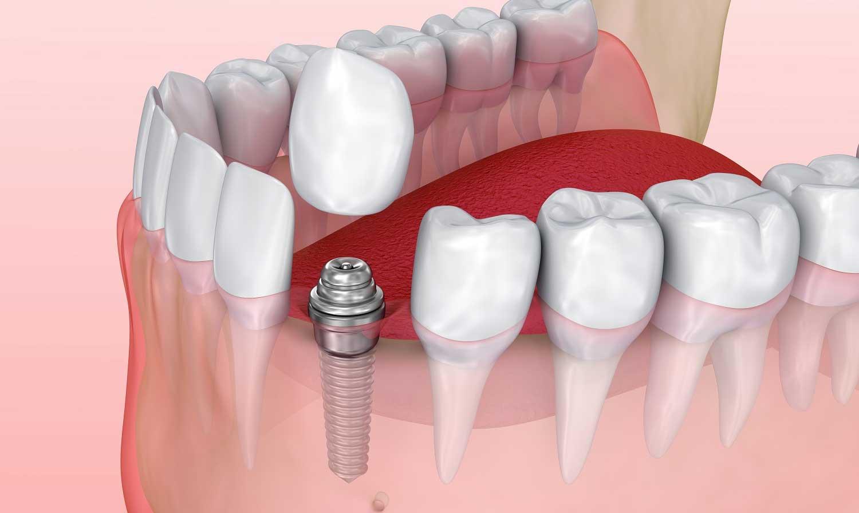 Имплант на передний зуб