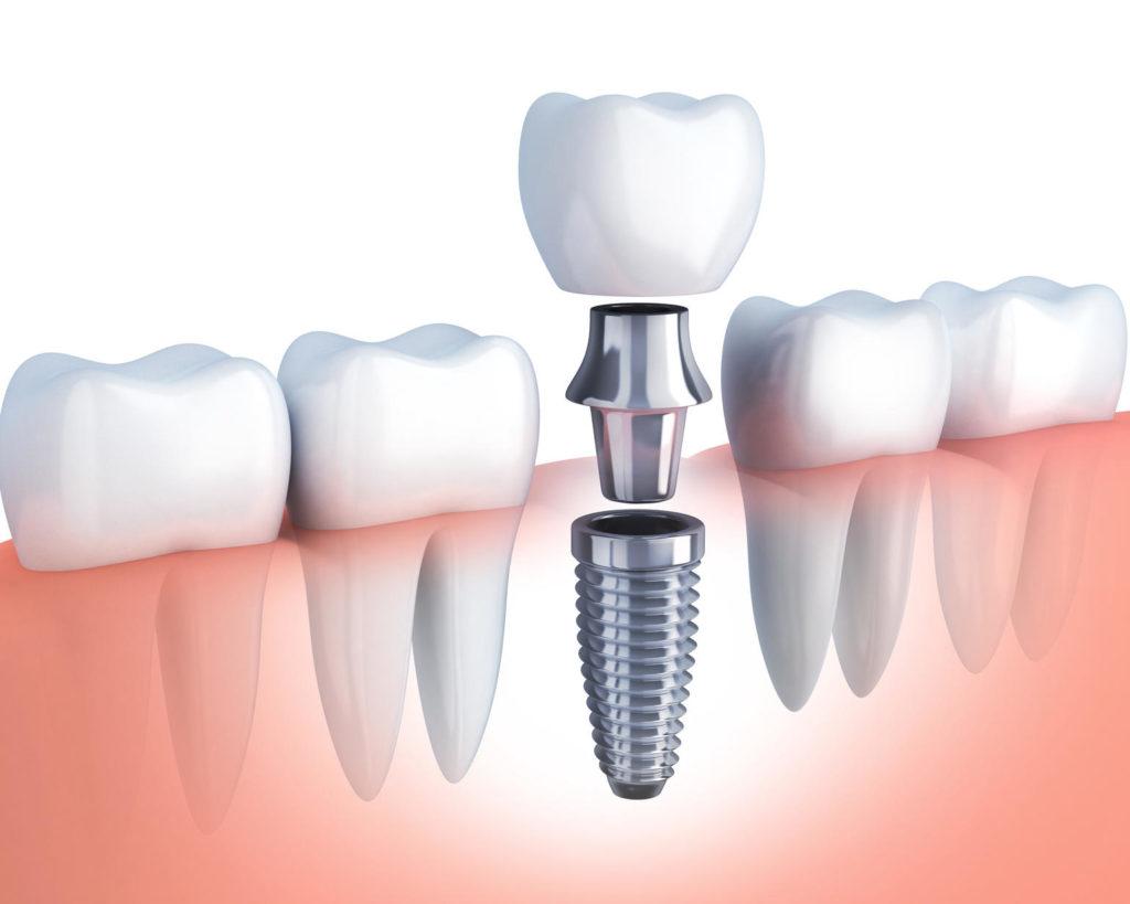 Самые надежные зубные импланты