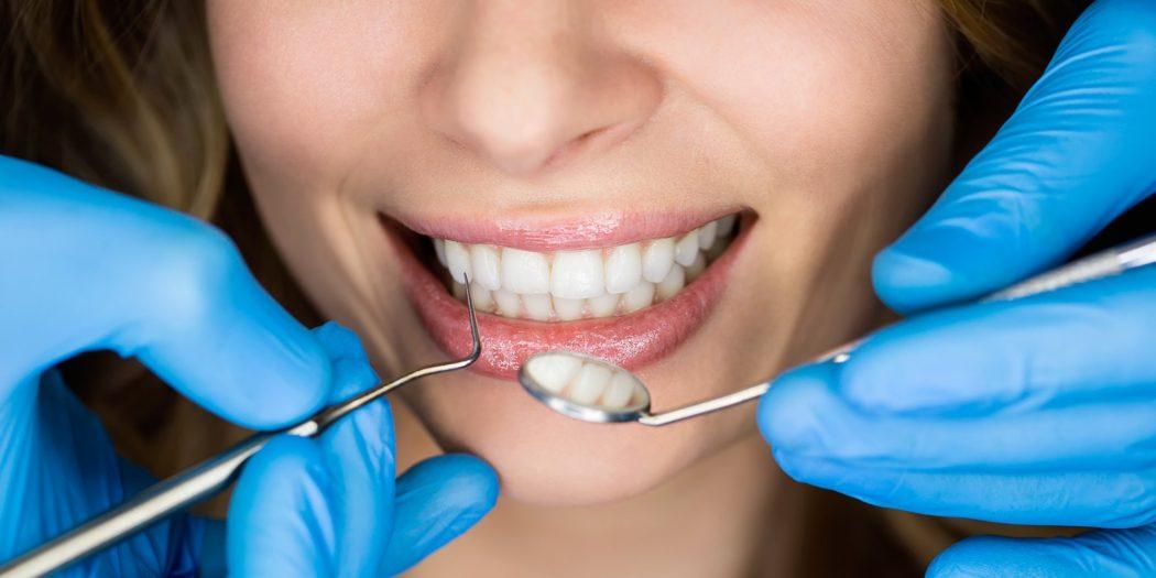 Восстановление передних зубов с помощью имплантации