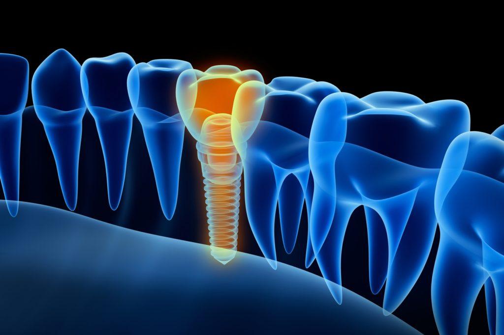 Почему не стоит бояться делать имплантацию зубов