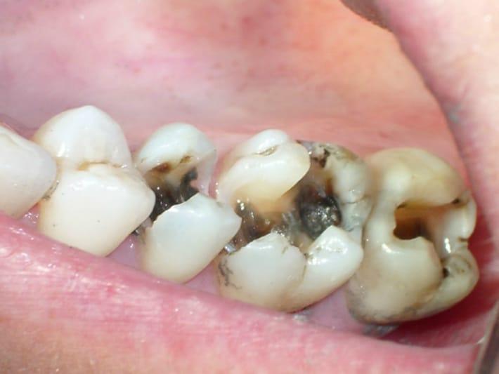 Процесс разрушения твердых тканей зуба