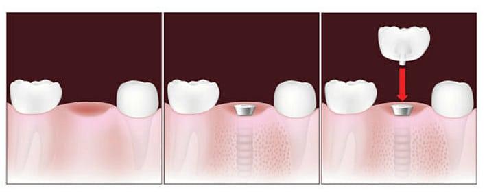 Метод быстрого восстановления утраченного зуба