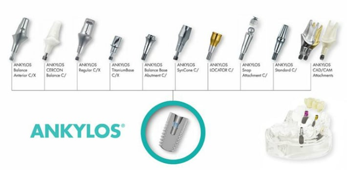 Разновидности имплантов Анкилоз