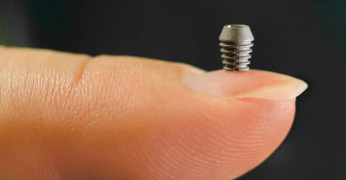 Система имплантов bicon
