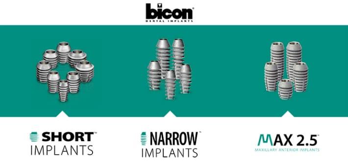 Виды имплантов bicon