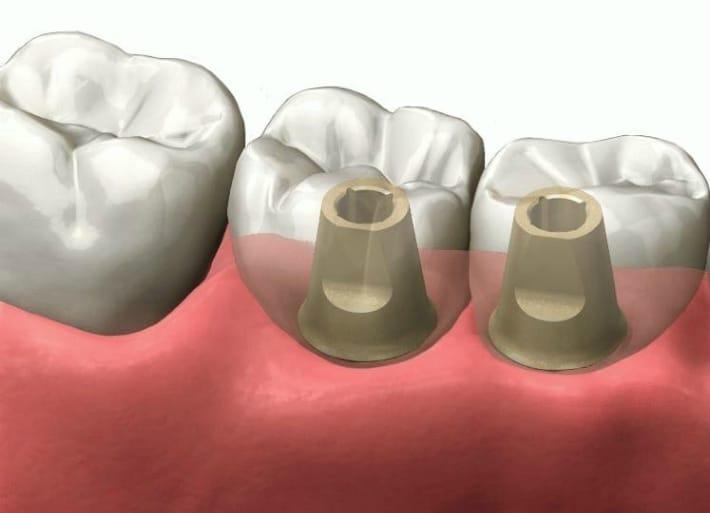 Имплантаты премиум-класса
