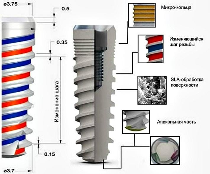Широкий спектр имплантов MIS