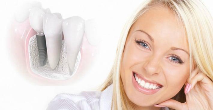восстановления утраченных зубов