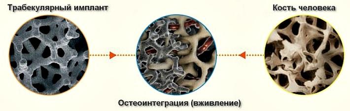 Трабекулярные имплантаты Zimmer