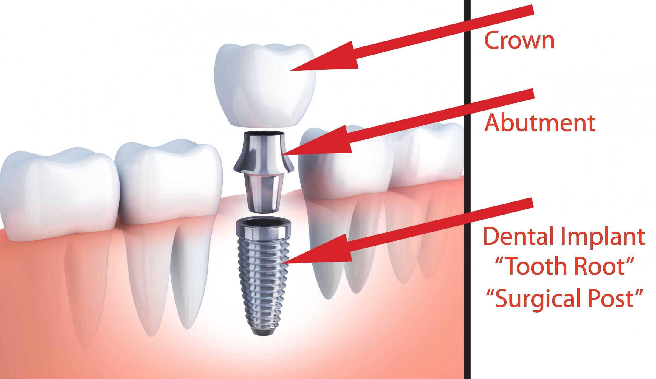 Детали имплантированного зуба