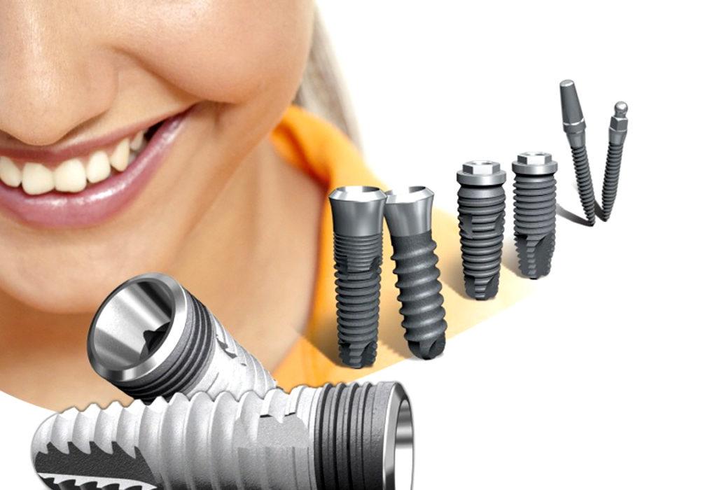 Белорусские зубные импланты Radix